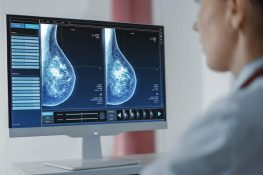 A Revolution in Early Breast Cancer Diagnosis